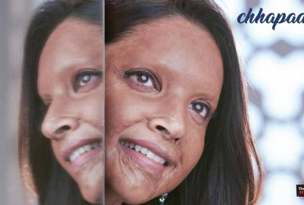 deepika-padukone-first-look-from-chhapaak-thelastreview